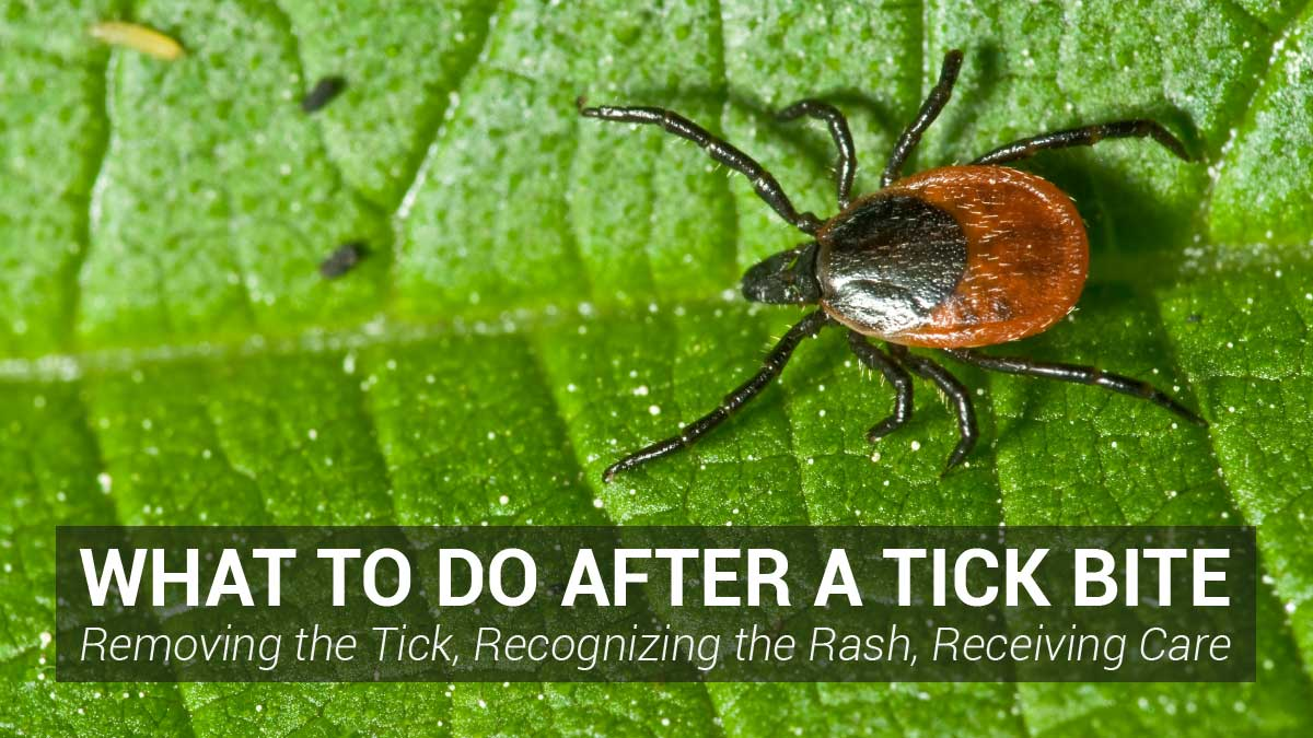 What to Do After a Tick Bite