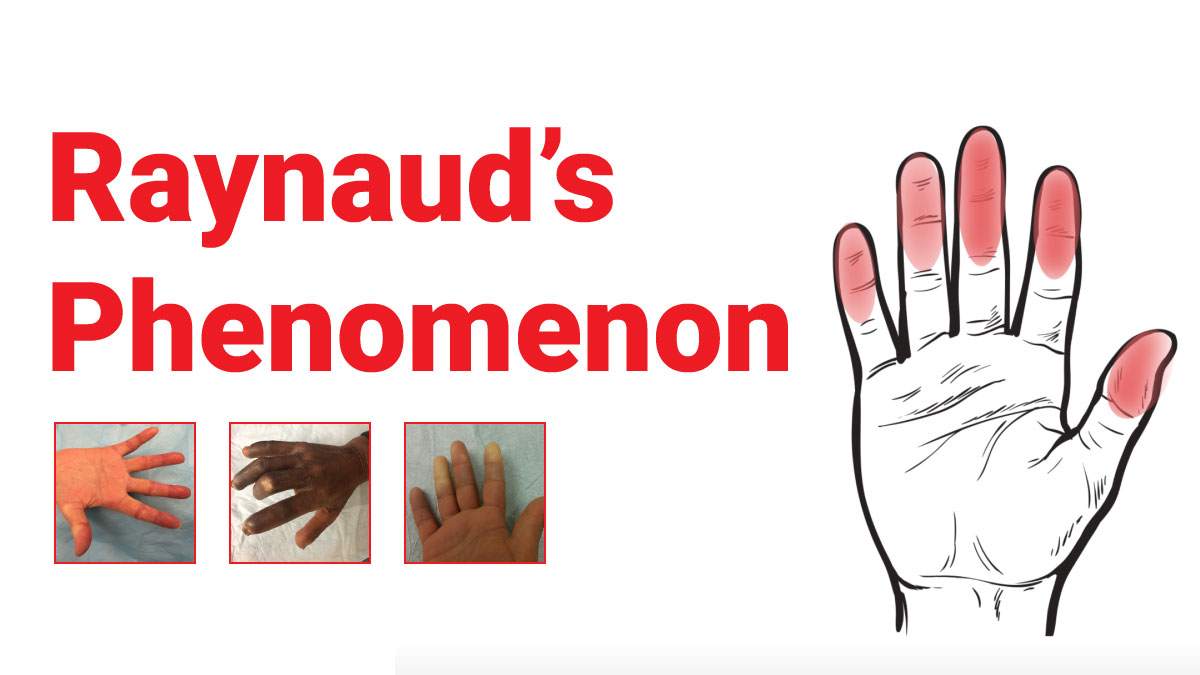 Raynaud's Phenomenon : What You Should Know