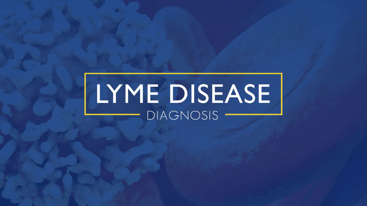 Diagnosing Lyme Disease