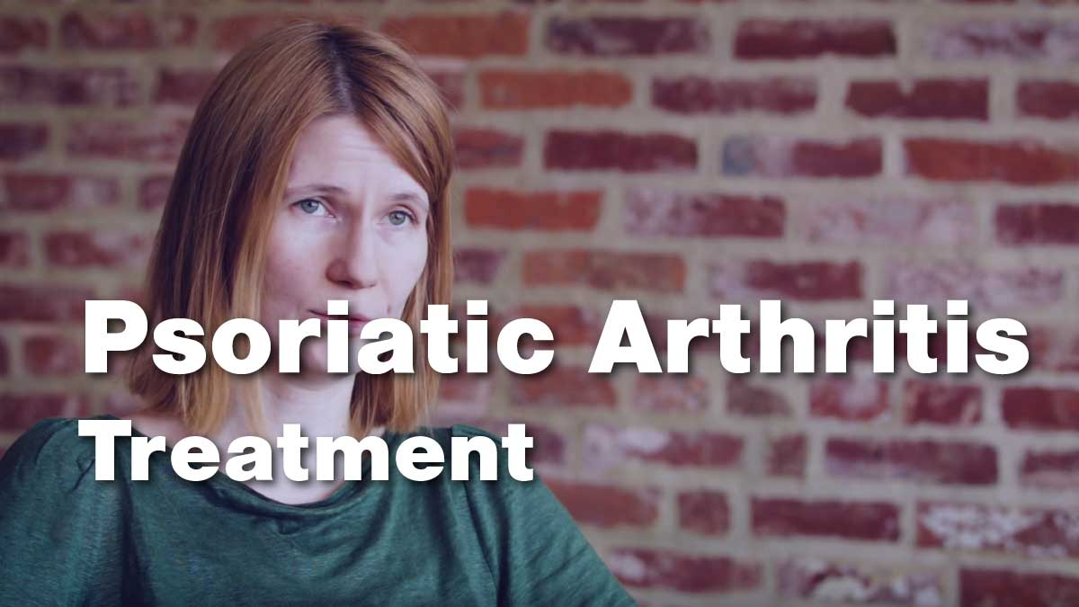 Dr. Orbai discusses treating Psoriatic Arthritis