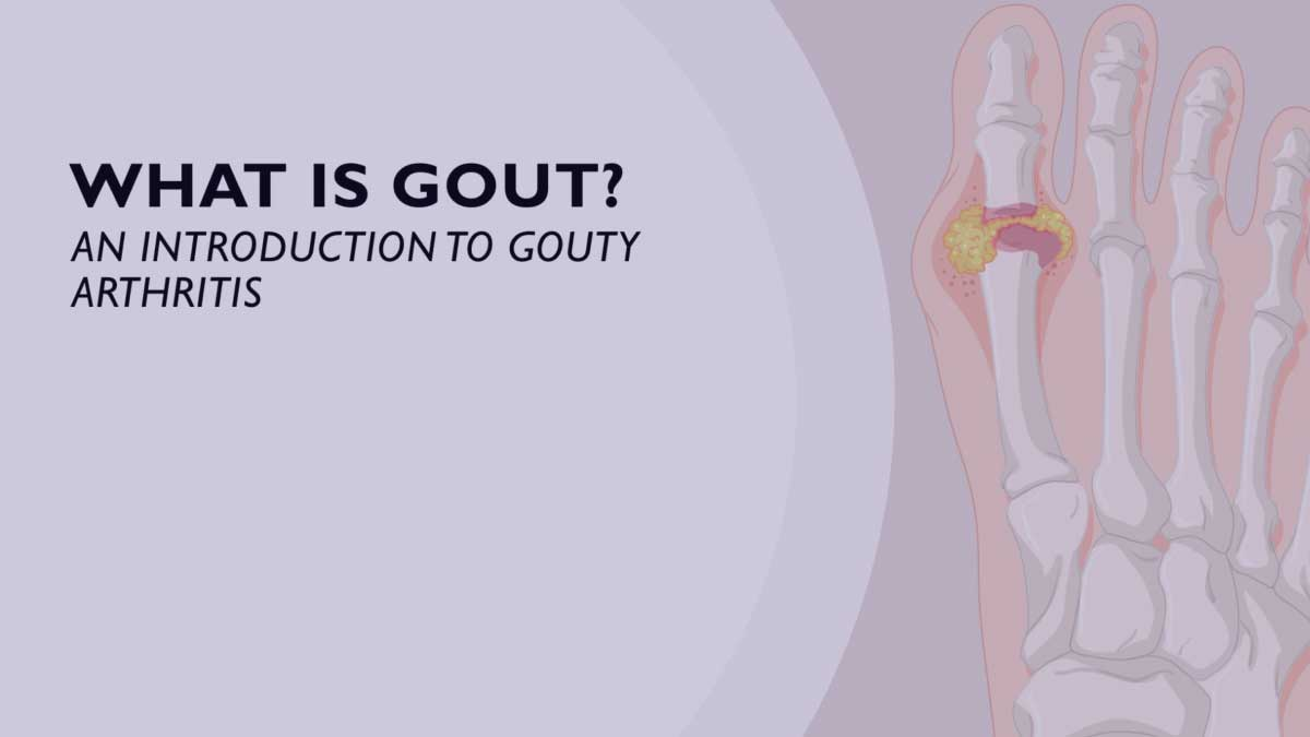 What is Gout? An introduction to gouty arthritis