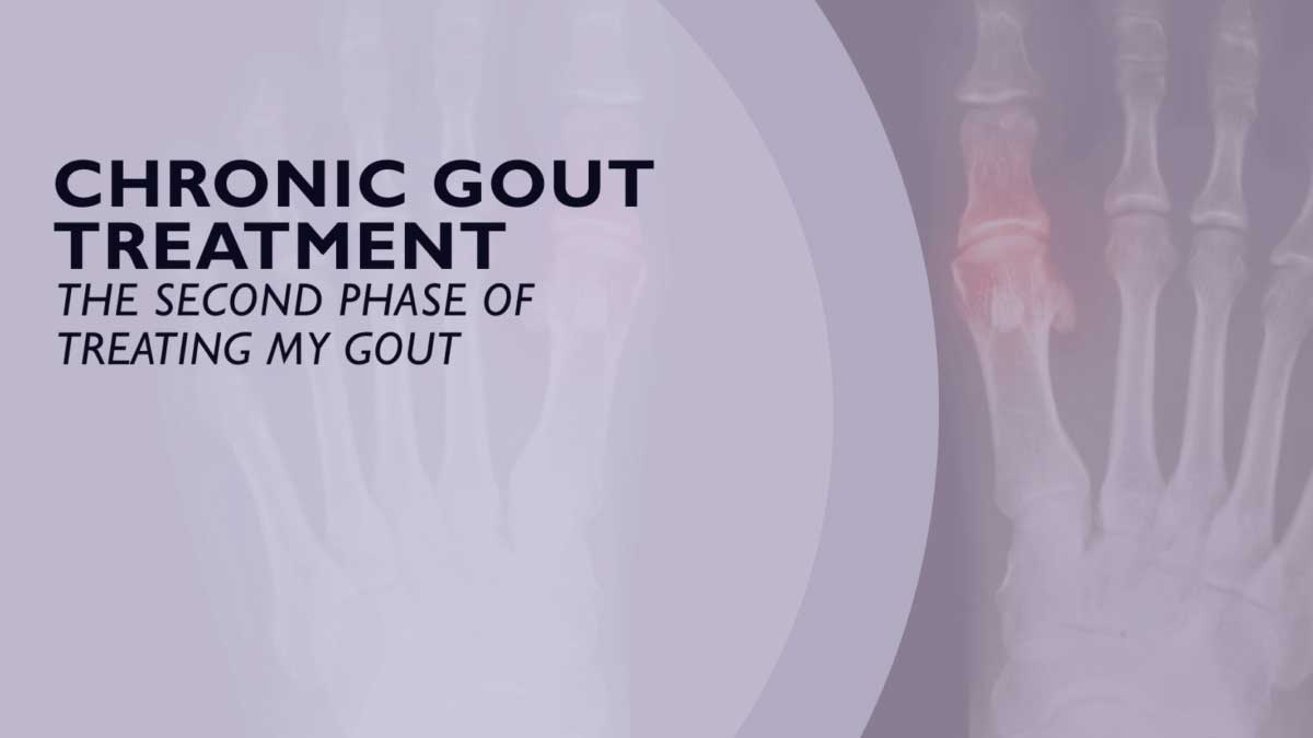 Chronic Gout Treatment – The Second Phase of Treating Gout