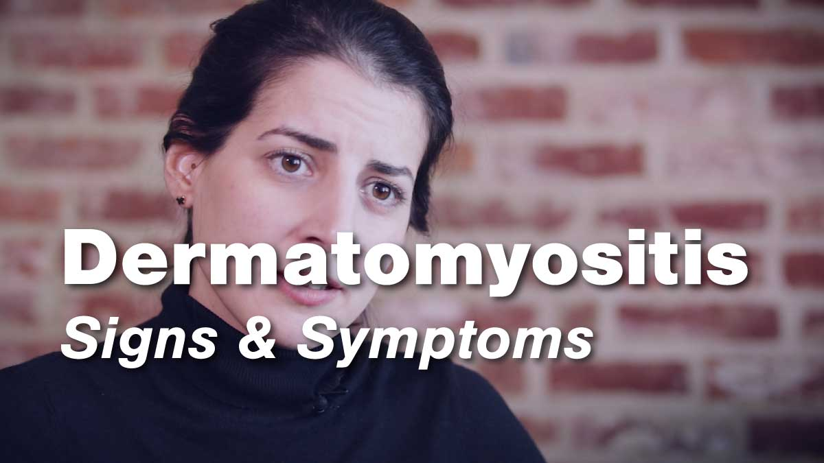 Dermatomyositis Signs & Symptoms