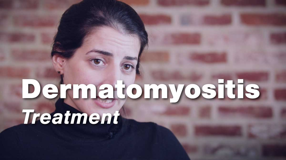 Dermatomyositis Treatment